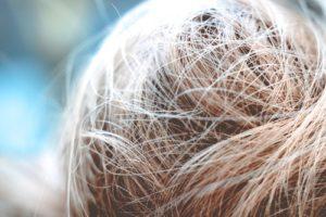 perte_cheveux
